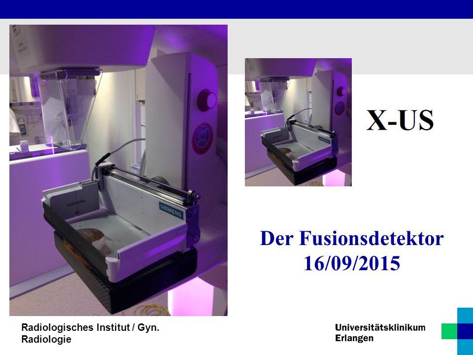 Der Fusionsdetektor 16/09/2015