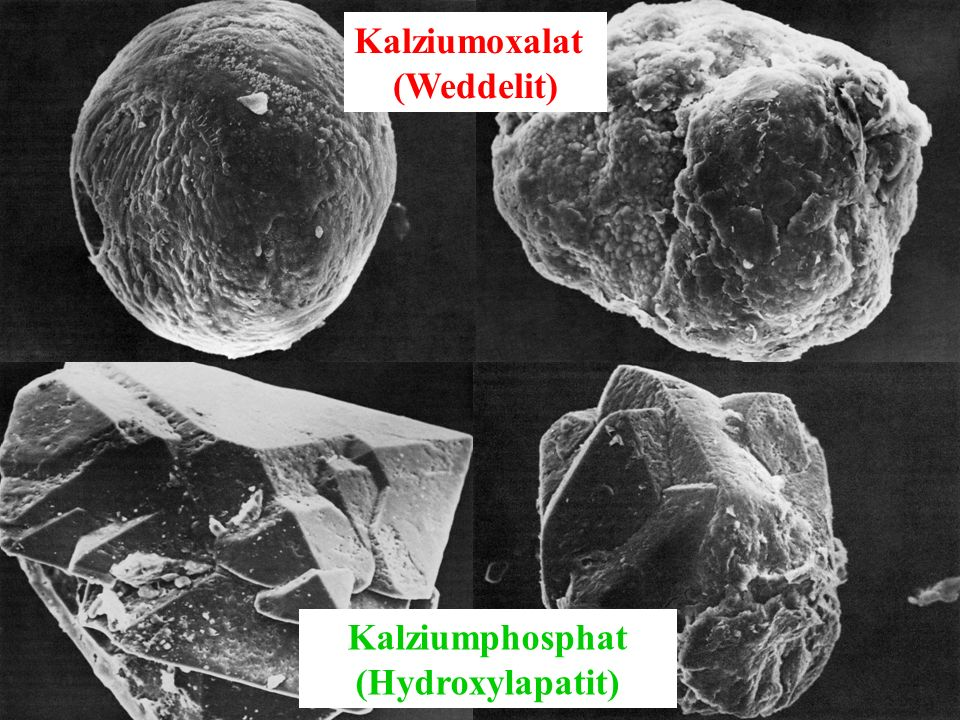 Kalziumoxalat (Weddelit) Kalziumphosphat (Hydroxylapatit)