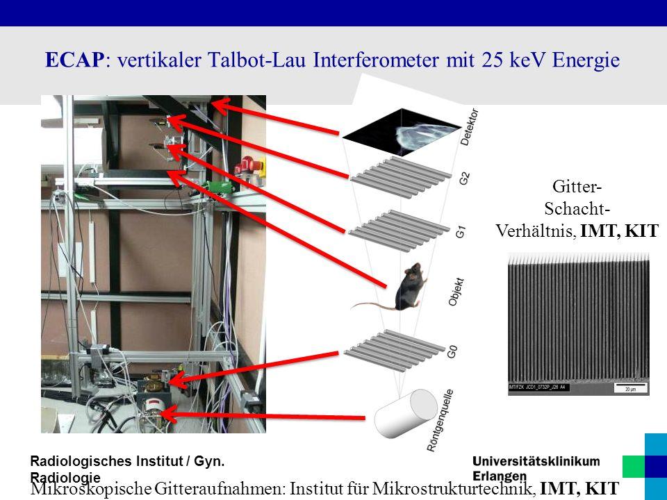 ECAP: vertikaler Talbot-Lau Interferometer mit 25 keV Energie