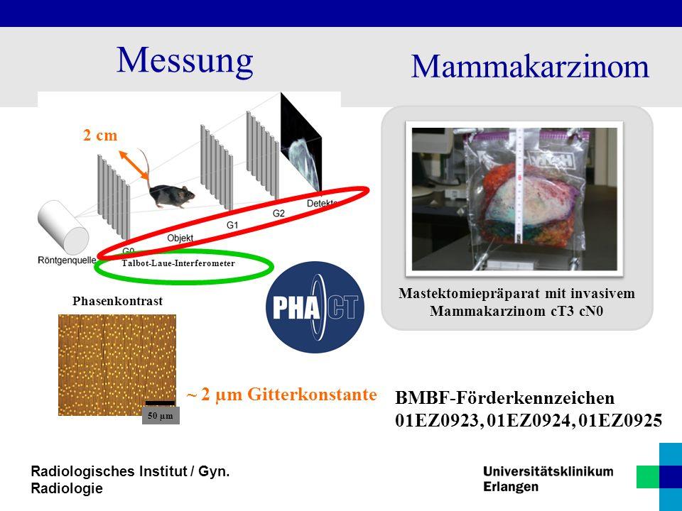 Mastektomiepräparat mit invasivem Mammakarzinom cT3 cN0