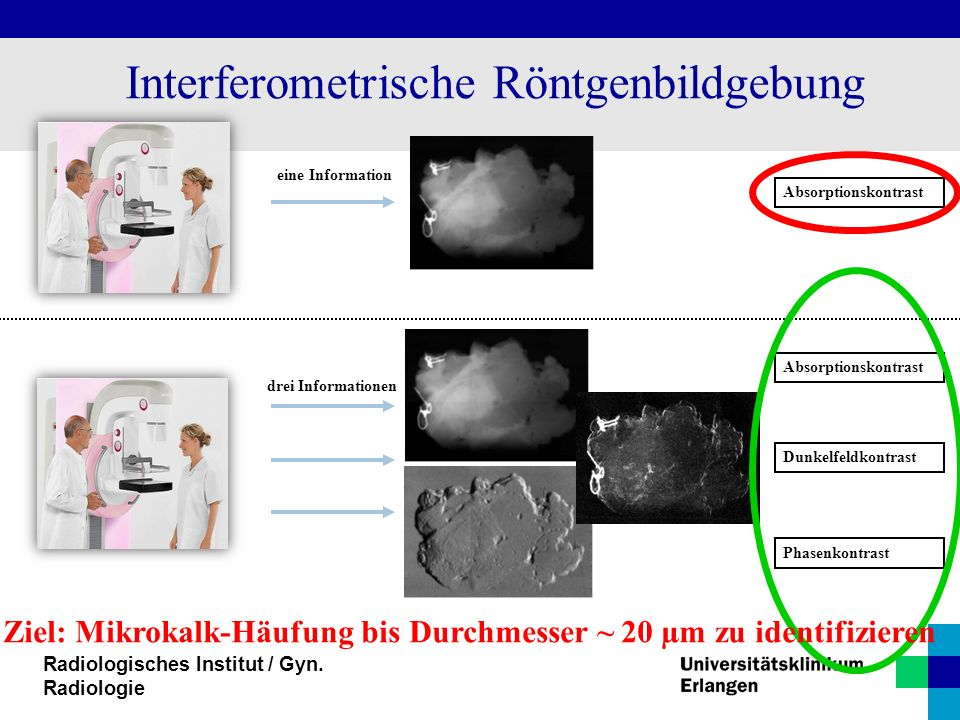 Interferometrische Röntgenbildgebung