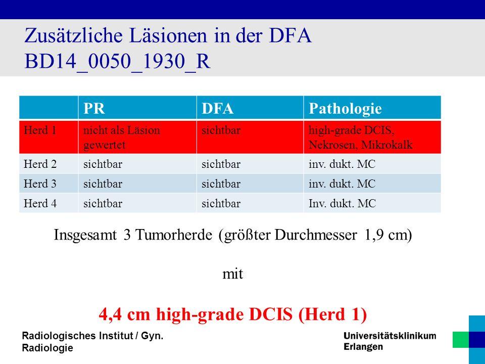 Zusätzliche Läsionen in der DFA BD14_0050_1930_R