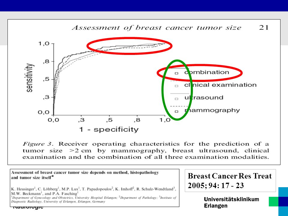 Breast Cancer Res Treat 2005; 94: 17 - 23