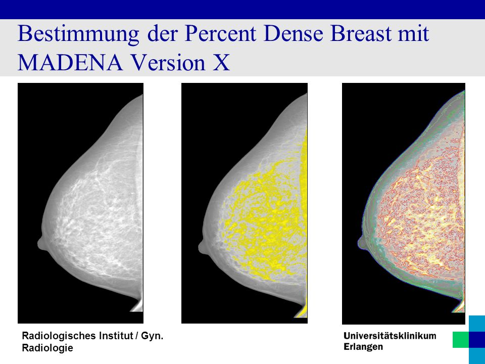 Bestimmung der Percent Dense Breast mit MADENA Version X