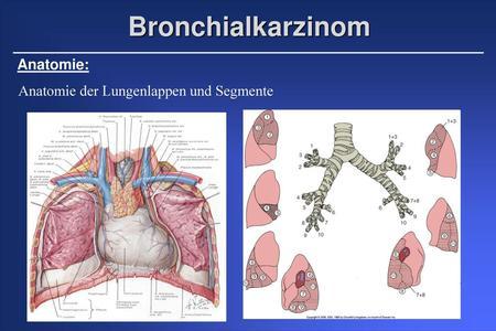 Onkologische Bildgebung Strukturierte Befundung beim Lungenkarzinom ...