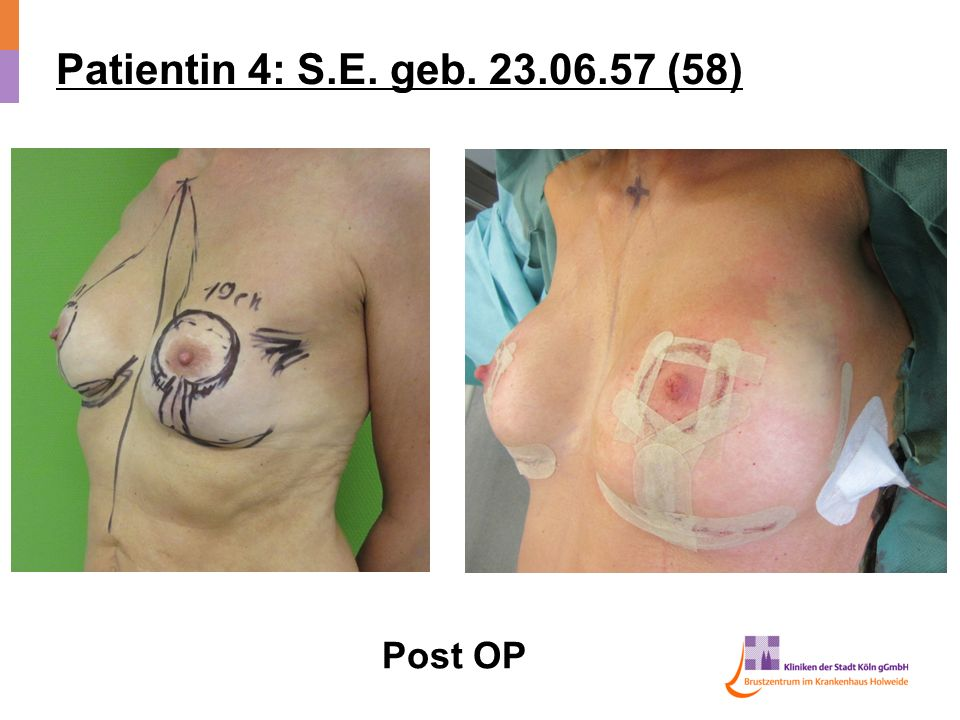 Patientin 4: S.E. geb. 23.06.57 (58) Post OP
