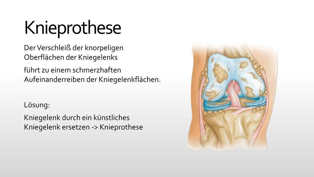 Künstliches Kniegelenk - ppt video online herunterladen