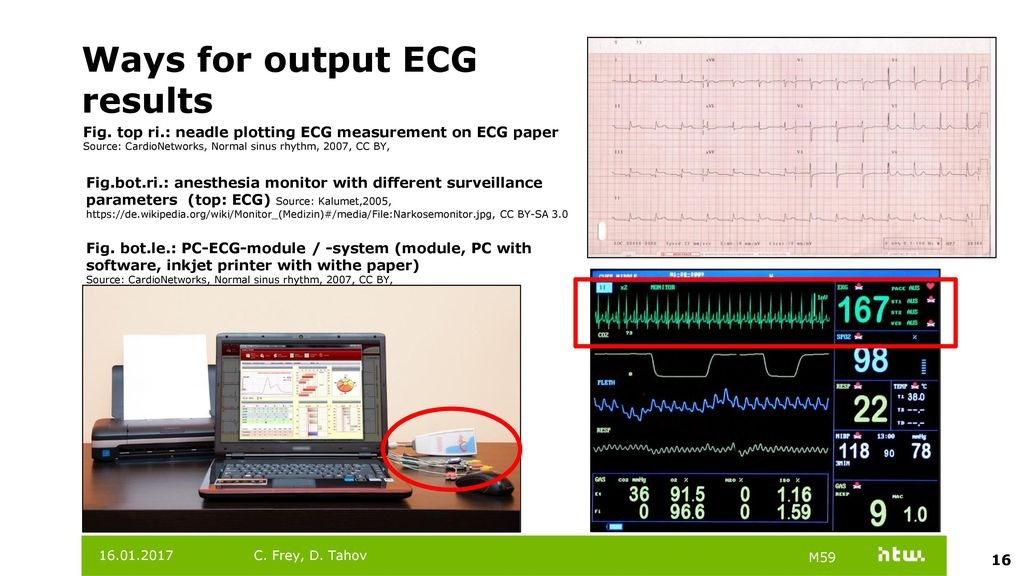 Focus: Electrocardiography (ECG) - ppt video online