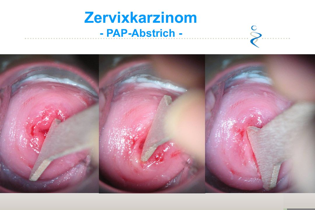 Sekundäre Prevention Zervixkarzinom - PAP-Abstrich -