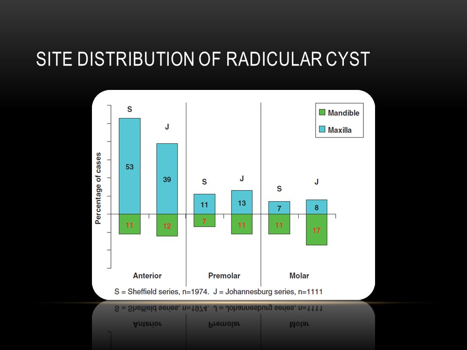 Site distribution of radicular cyst