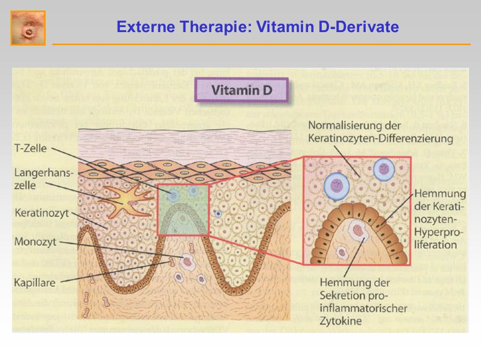Externe Therapie: Vitamin D-Derivate