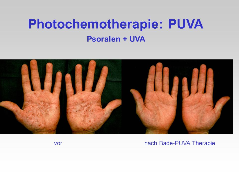 Photochemotherapie: PUVA
