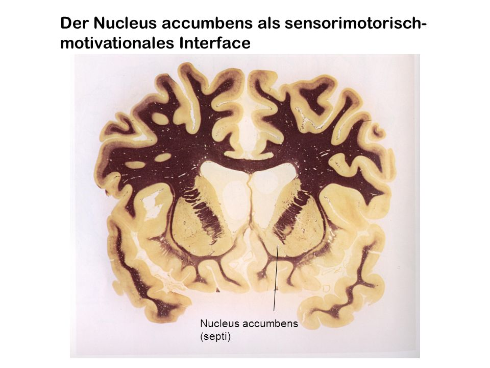 Der Nucleus accumbens als sensorimotorisch- motivationales Interface