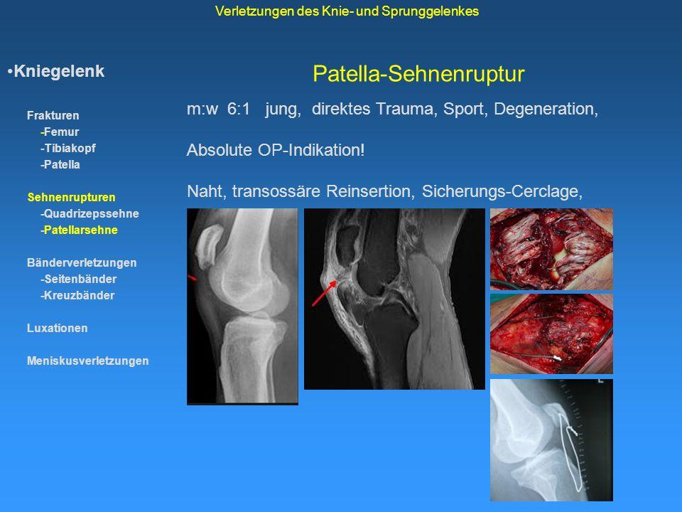 Unfallchirurgie & Sporttraumatologie - ppt video online herunterladen