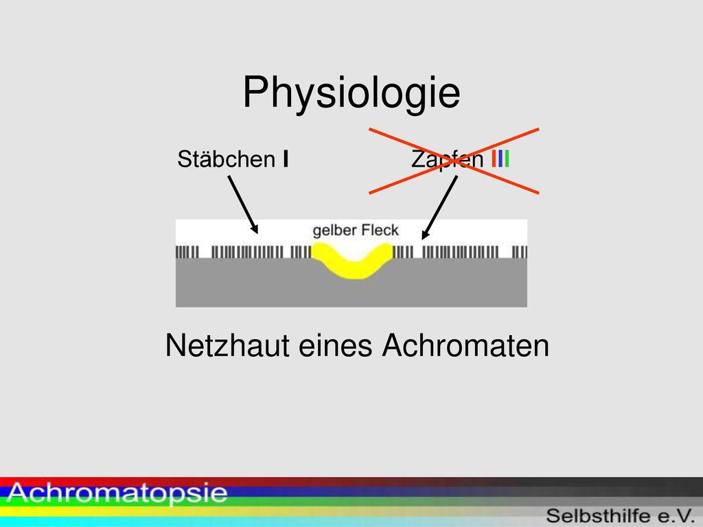 Achromatopsie Selbsthilfe e.V. - ppt herunterladen