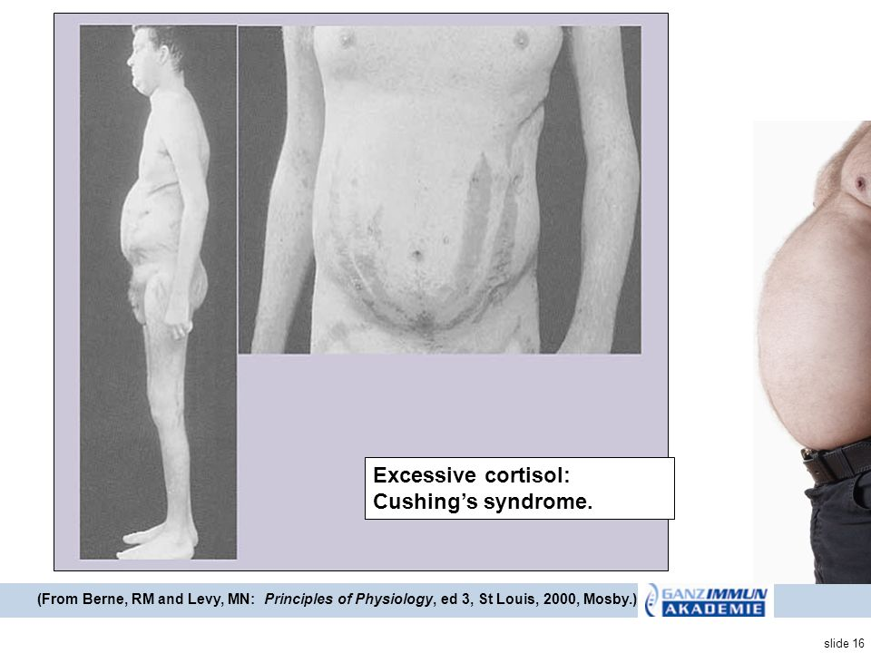 Excessive cortisol: Cushing's syndrome.
