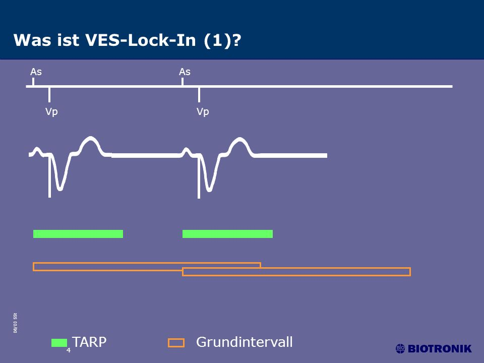 Was ist VES-Lock-In (1) As As Vp Vp TARP Grundintervall 4