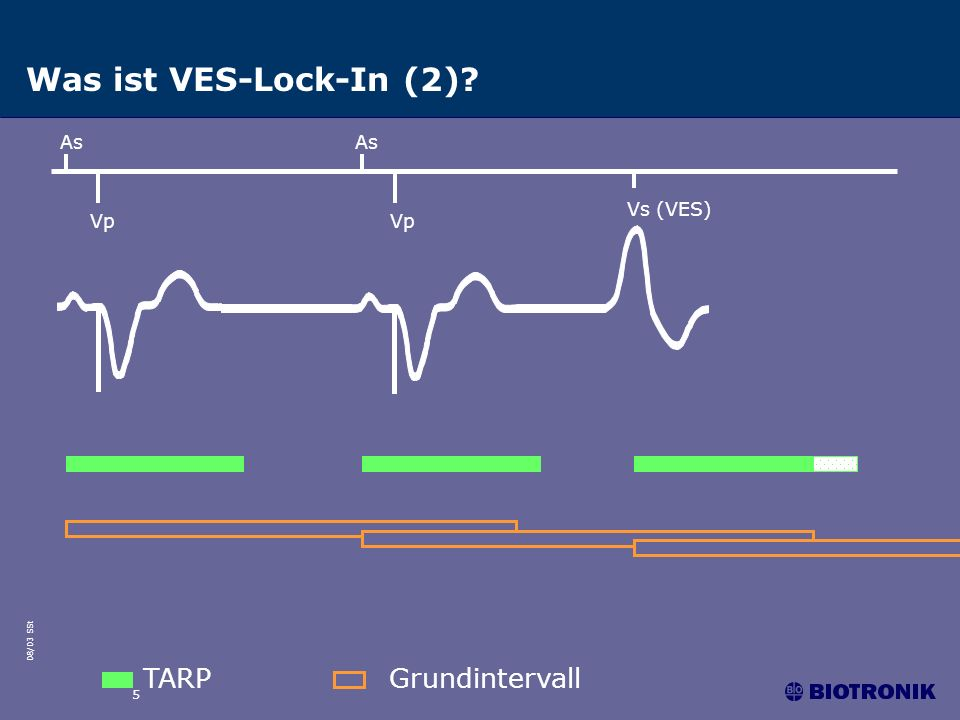Was ist VES-Lock-In (2) As As Vs (VES) Vp Vp TARP Grundintervall 5