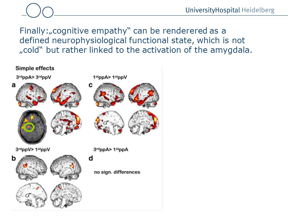 "Finally:""cognitive empathy can be renderered as a defined neurophysiological functional state, which is not ""cold but rather linked to the activation of the amygdala."