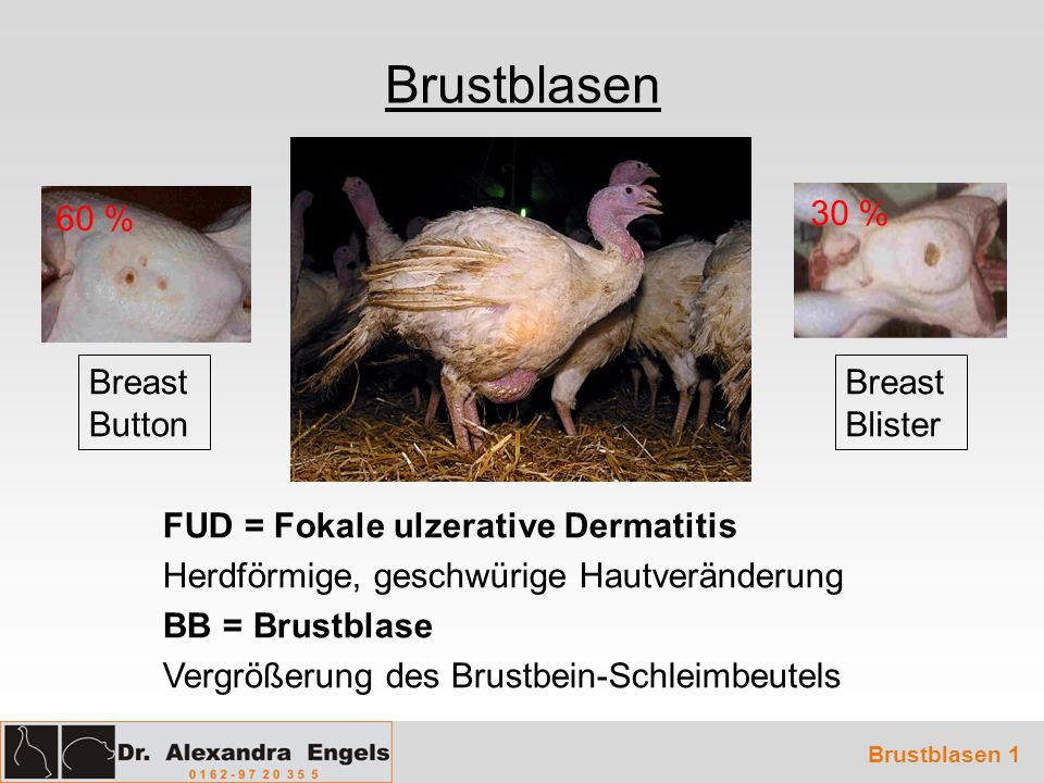 Brustblasen 60 % 30 % Breast Button Breast Blister