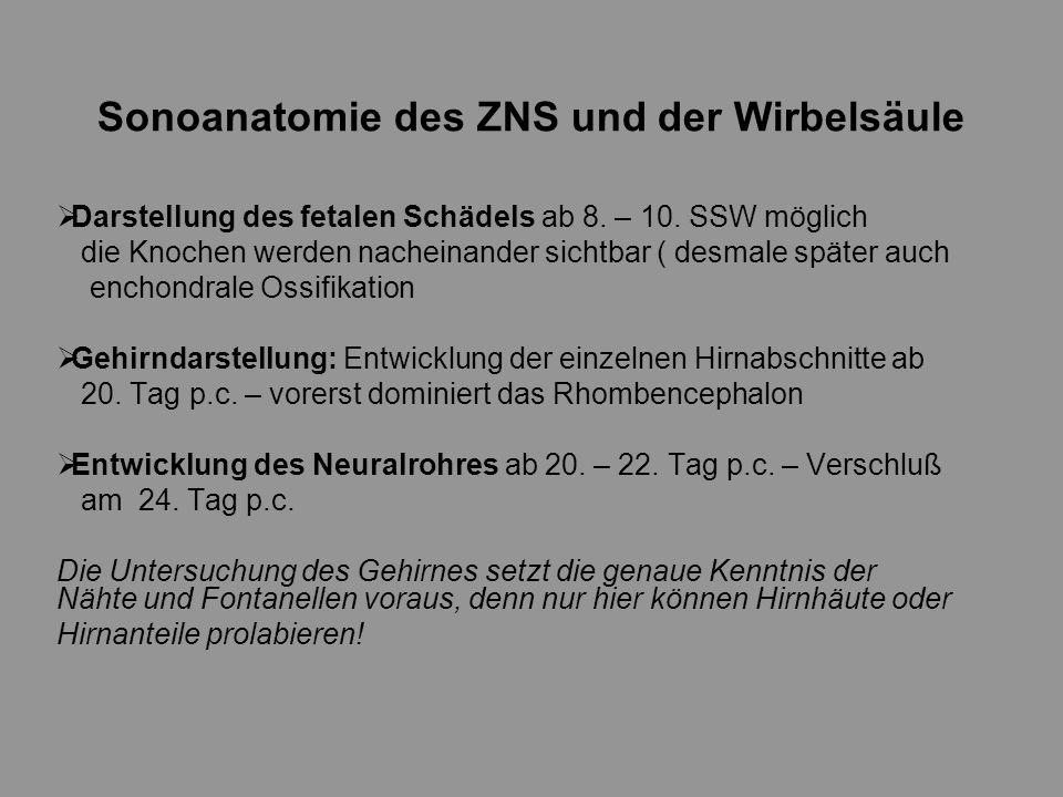 Sonoanatomie des ZNS und der Wirbelsäule - ppt herunterladen