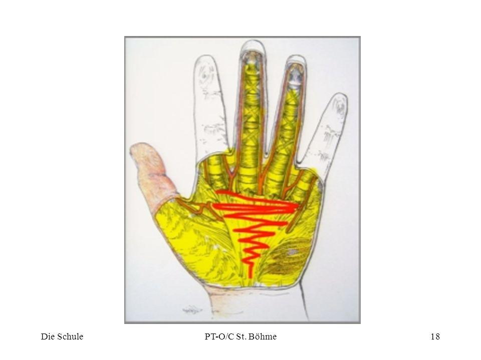 """die Krankheit der """"verkrümmten Finger"""" - ppt herunterladen"""