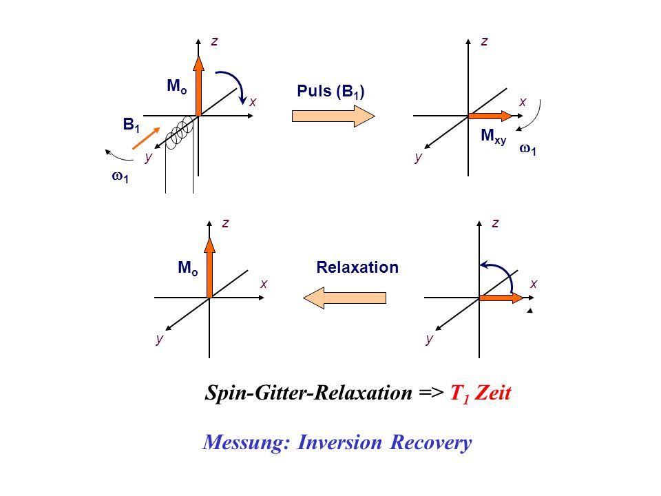 Spin-Gitter-Relaxation => T1 Zeit Messung: Inversion Recovery