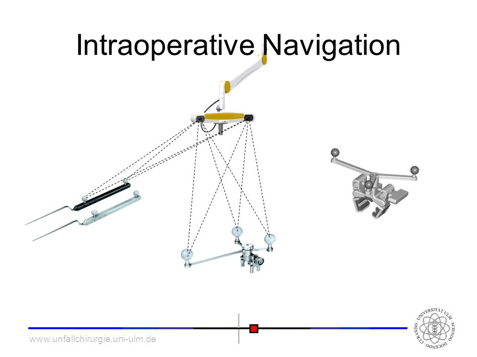 Intraoperative Navigation