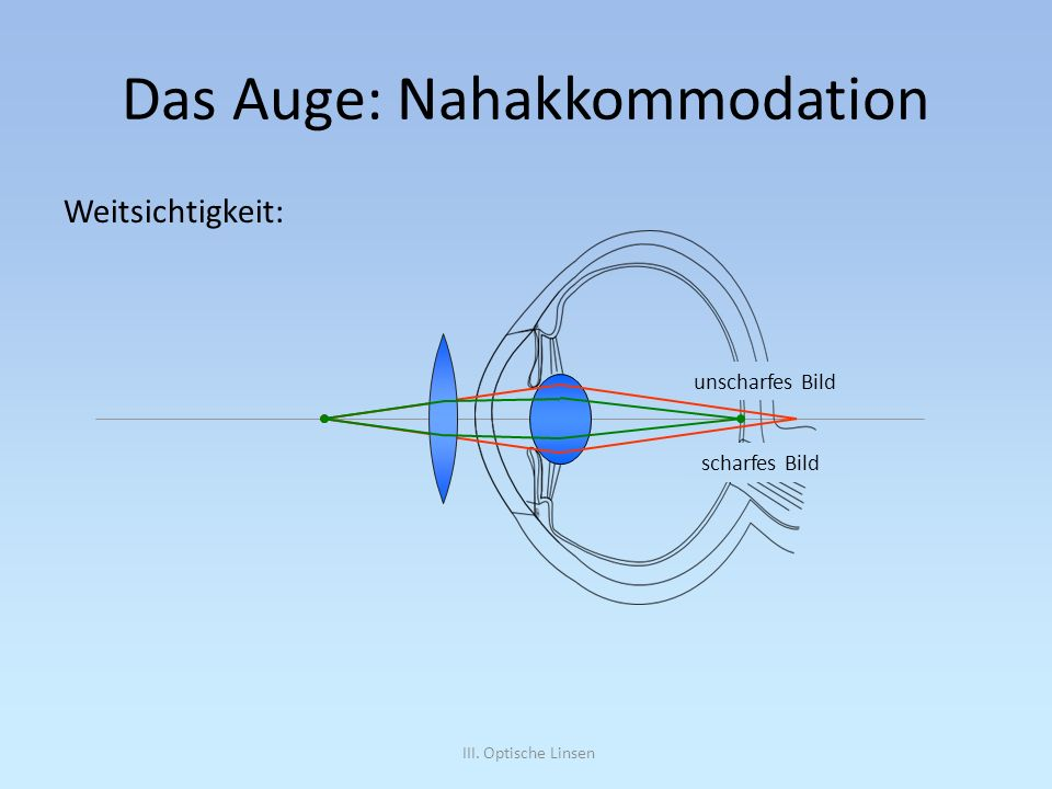 Das Auge: Nahakkommodation