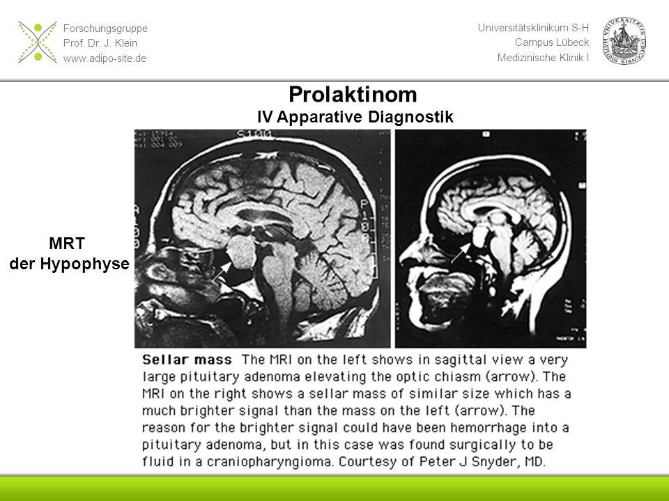 Repetitorium Innere Medizin Hypophyse-Nebenniere-Gonaden - ppt video ...