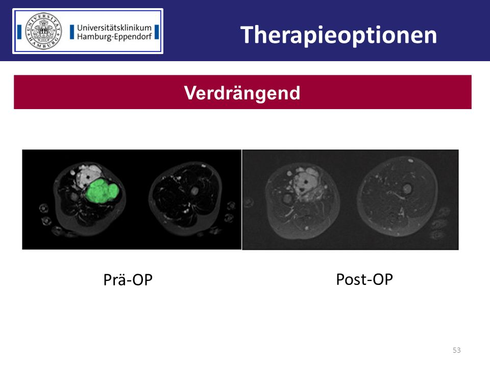Therapieoptionen Verdrängend Prä-OP Post-OP 53