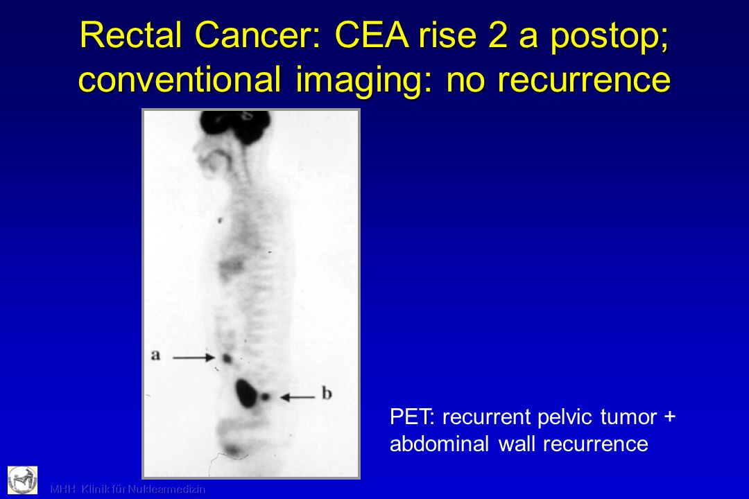 Rectal Cancer: CEA rise 2 a postop; conventional imaging: no recurrence