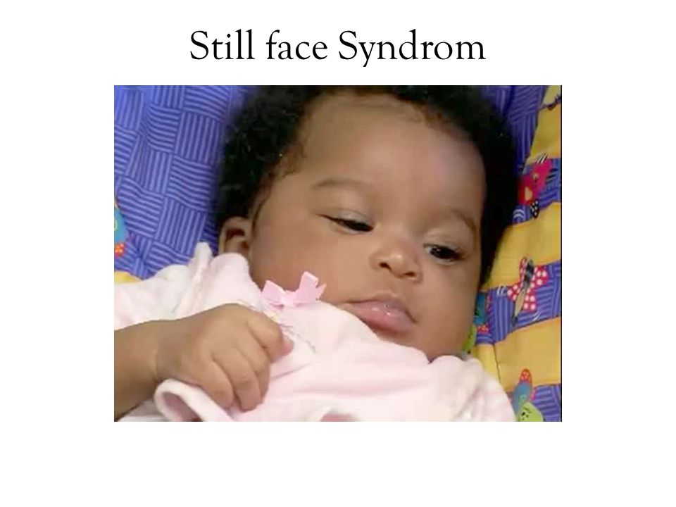 Still face Syndrom