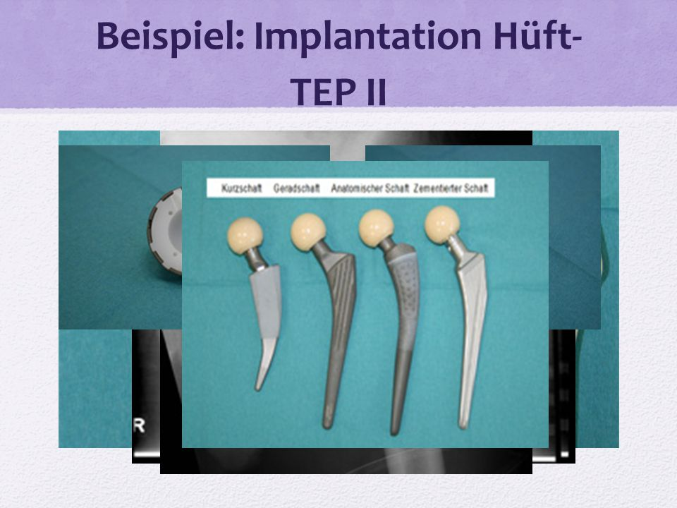 Beispiel: Implantation Hüft-TEP II