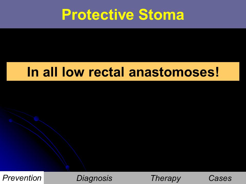 In all low rectal anastomoses!
