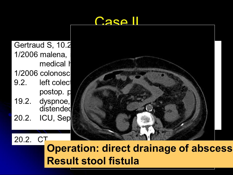 Case II Operation: direct drainage of abscess Result stool fistula