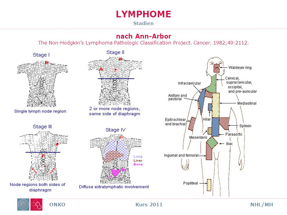 LYMPHOME Stadien nach Ann-Arbor The Non-Hodgkin's Lymphoma Pathologic Classification Project. Cancer. 1982;49:2112.