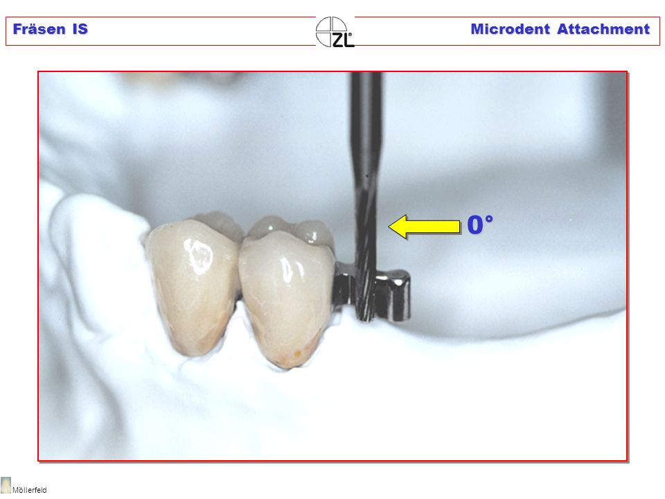 Fräsen IS Microdent Attachment