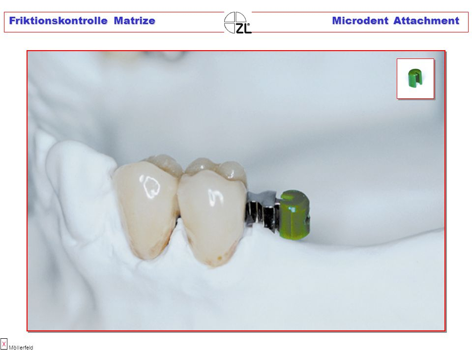 Friktionskontrolle Matrize Microdent Attachment