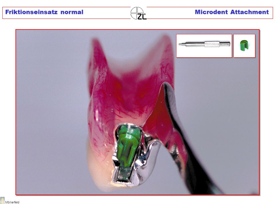 Friktionseinsatz normal Microdent Attachment
