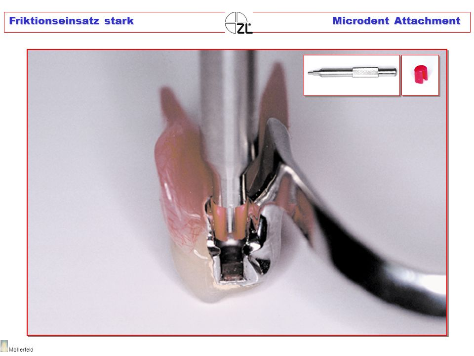 Friktionseinsatz stark Microdent Attachment