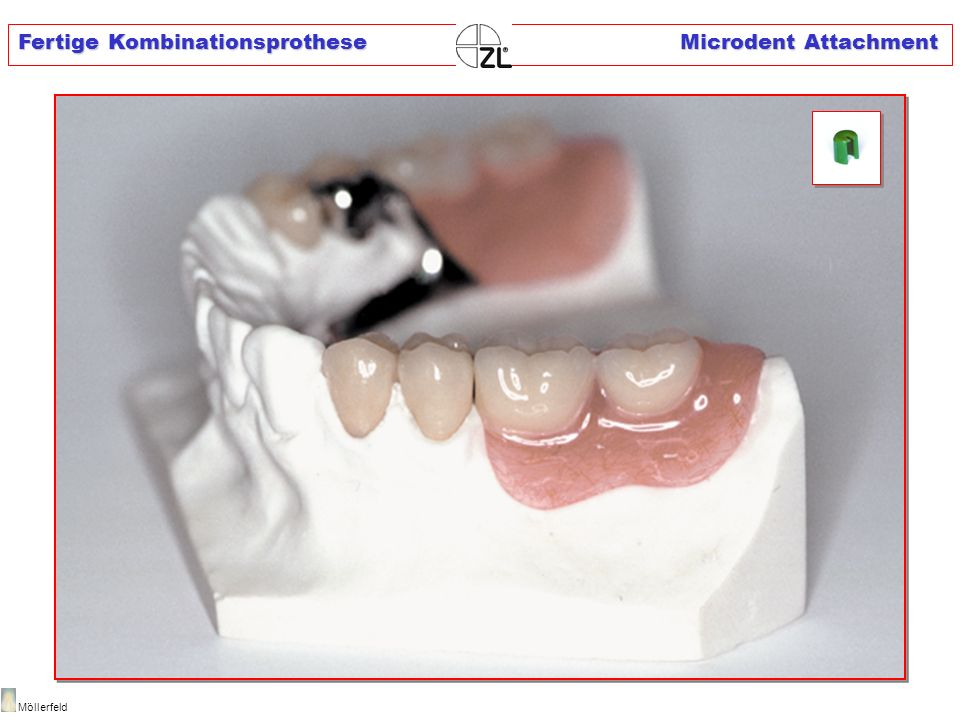 Fertige Kombinationsprothese Microdent Attachment
