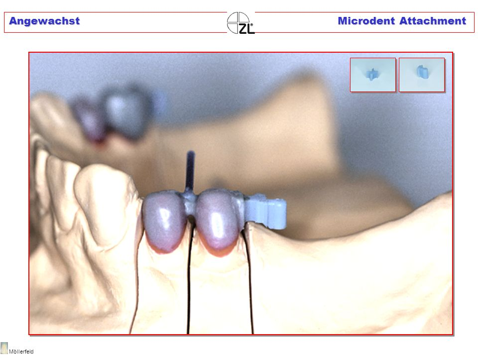 Angewachst Microdent Attachment
