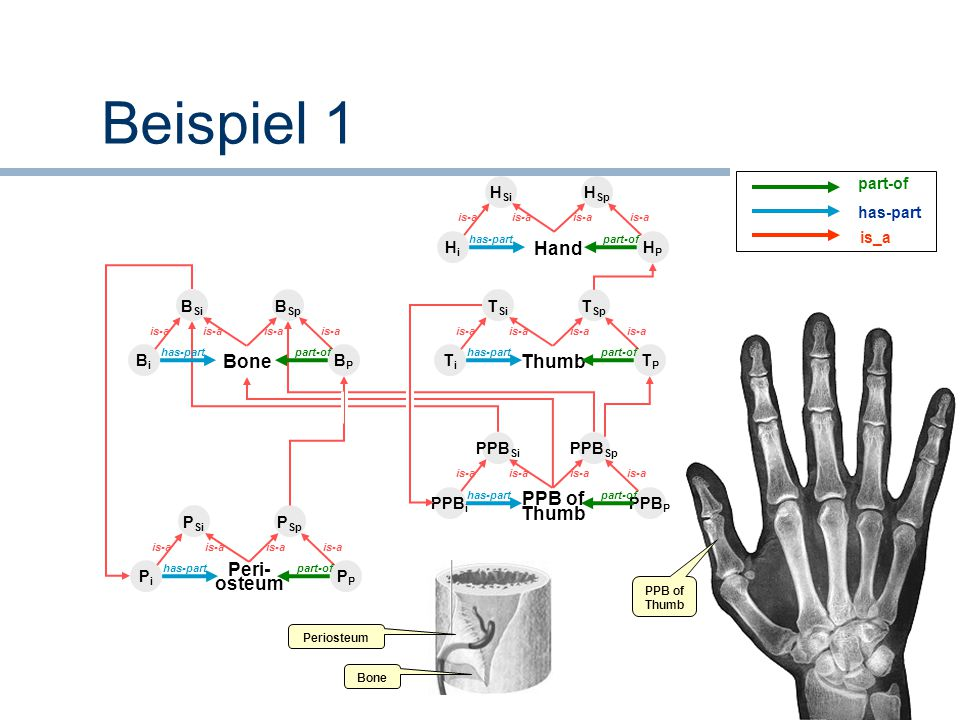 Beispiel 1 Hand Thumb Bone PPB of Thumb Peri- osteum part-of has-part