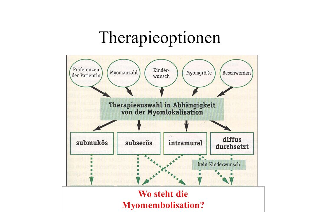 Therapieoptionen Wo steht die Myomembolisation