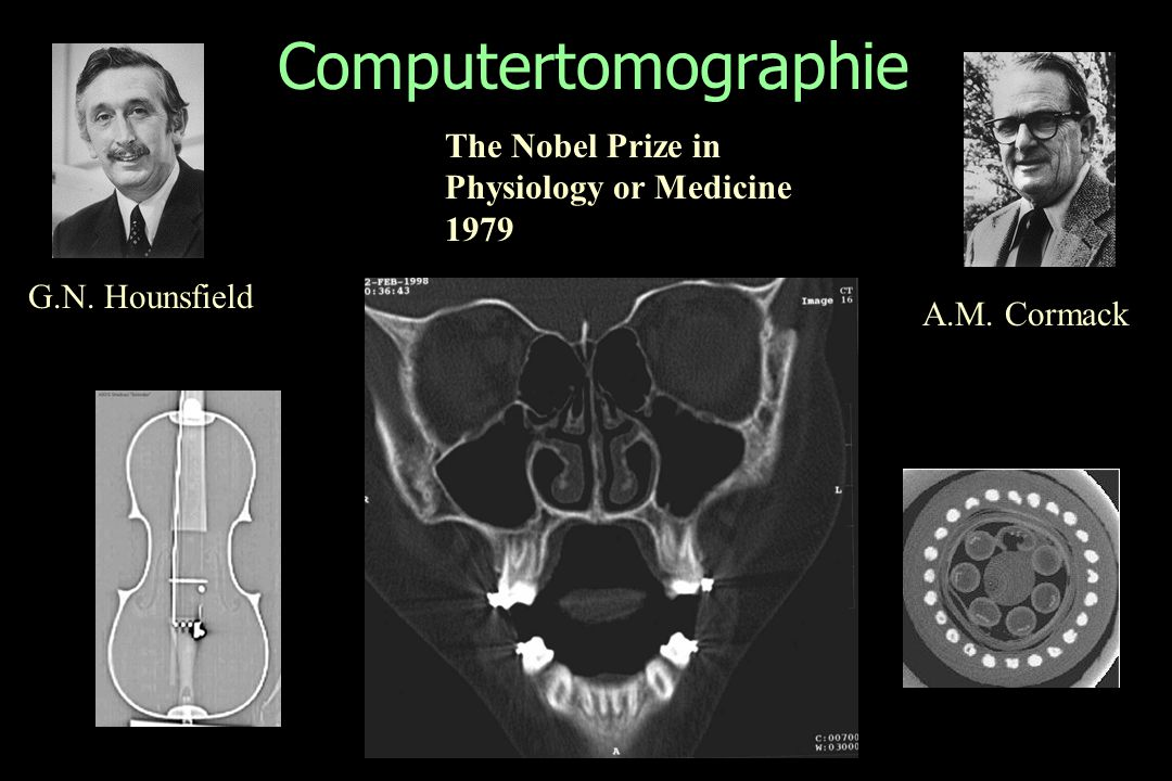 Computertomographie The Nobel Prize in Physiology or Medicine 1979