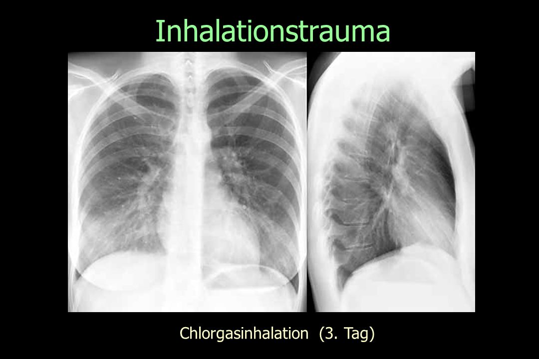 Inhalationstrauma Chlorgasinhalation (3. Tag)