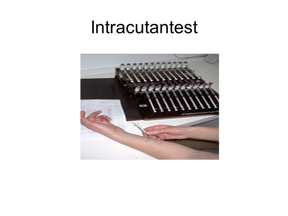 Intracutantest