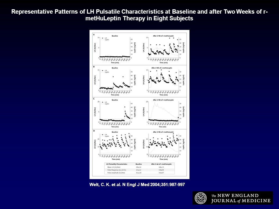Representative Patterns of LH Pulsatile Characteristics at Baseline and after Two Weeks of r-metHuLeptin Therapy in Eight Subjects