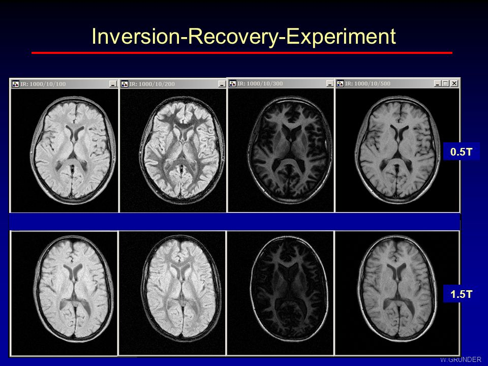 Inversion-Recovery-Experiment